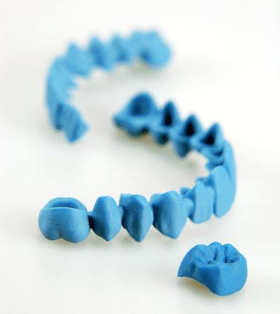 dental-bridge-and-crown-solidscape-400px