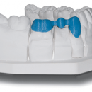 dental-3unit-bridge-on-model-solidscape-400px